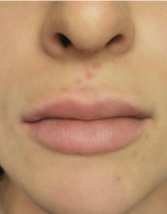 estens-trucco-permanente-labbra-sara-prima